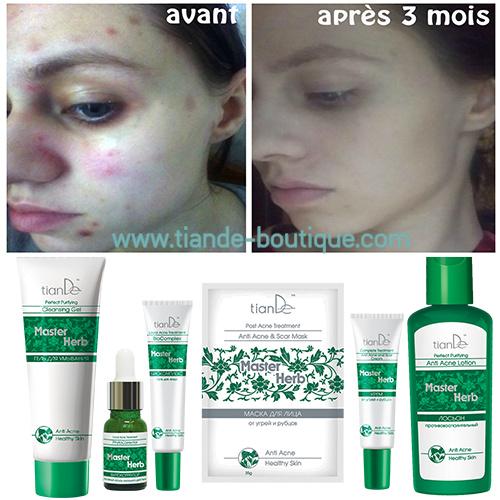 Lotion nettoyante anti-inflammatoire stop acné | Tiande